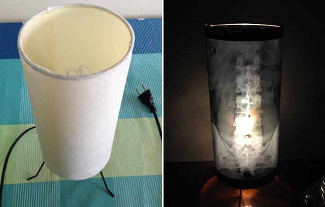 luminária-criaviva-radiografia-decoração-2